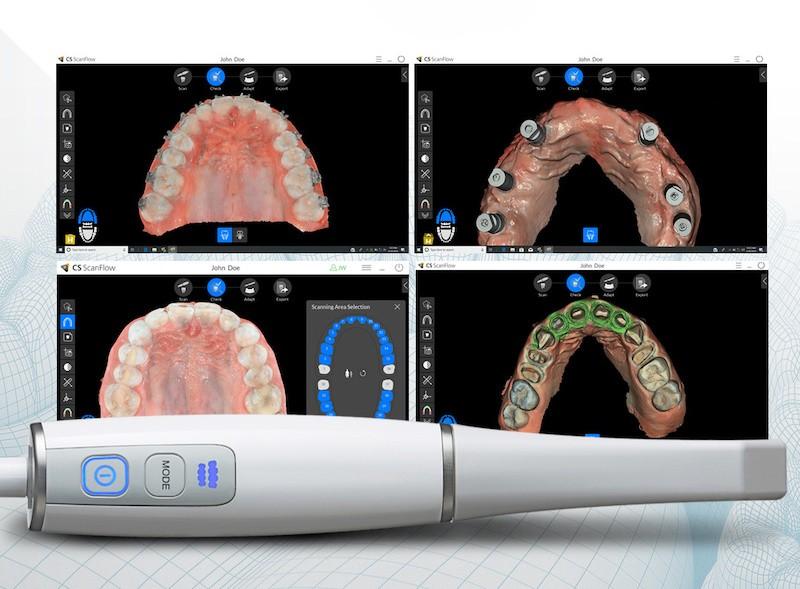 Strumenti di diagnosi nello studio odontoiatrico: velocità e sicurezza