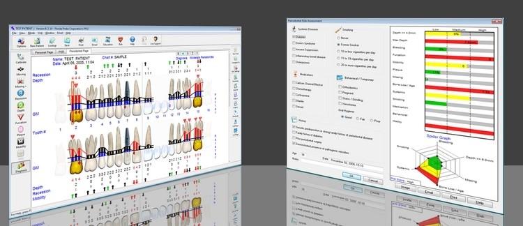 schermate software florida probe 3